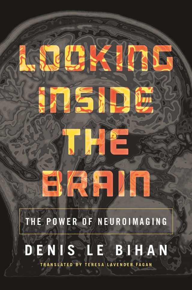 Looking Inside the Brain
